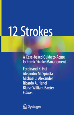 12 Strokes