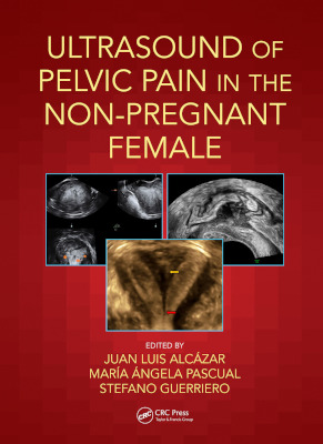 Aug2021 Ultrasound Of Pelvic Pain In The Non Pregnant Patient